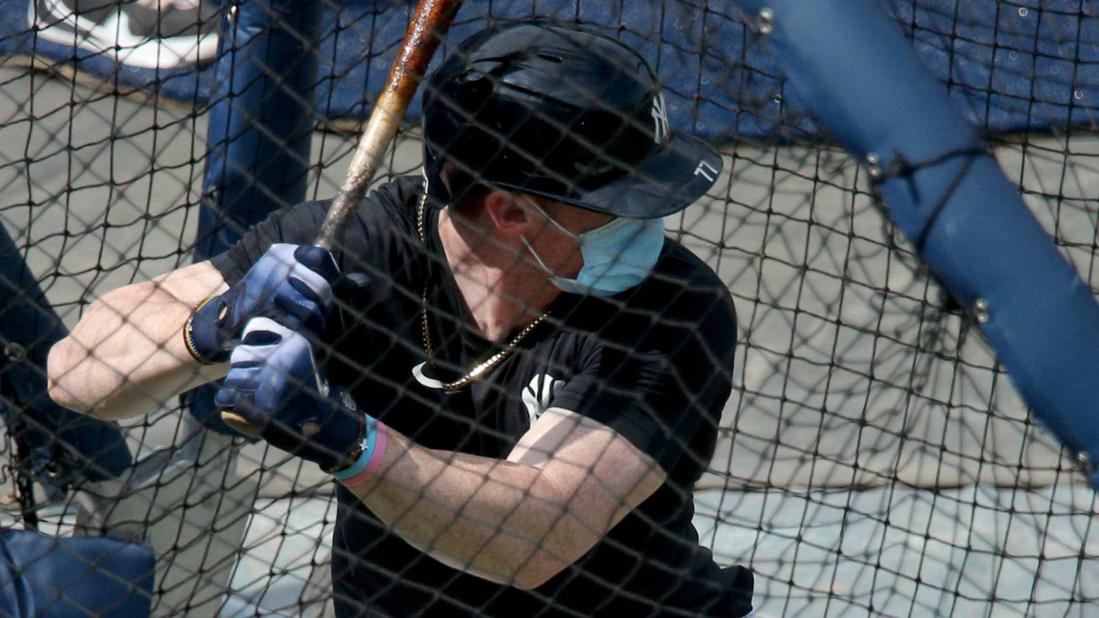 Yankees' Clint Frazier may wear mask during games